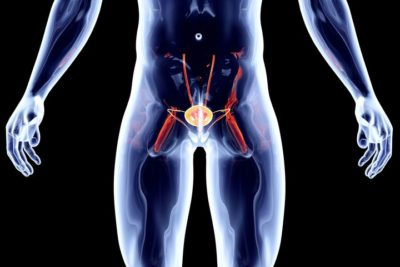 adenome prostate